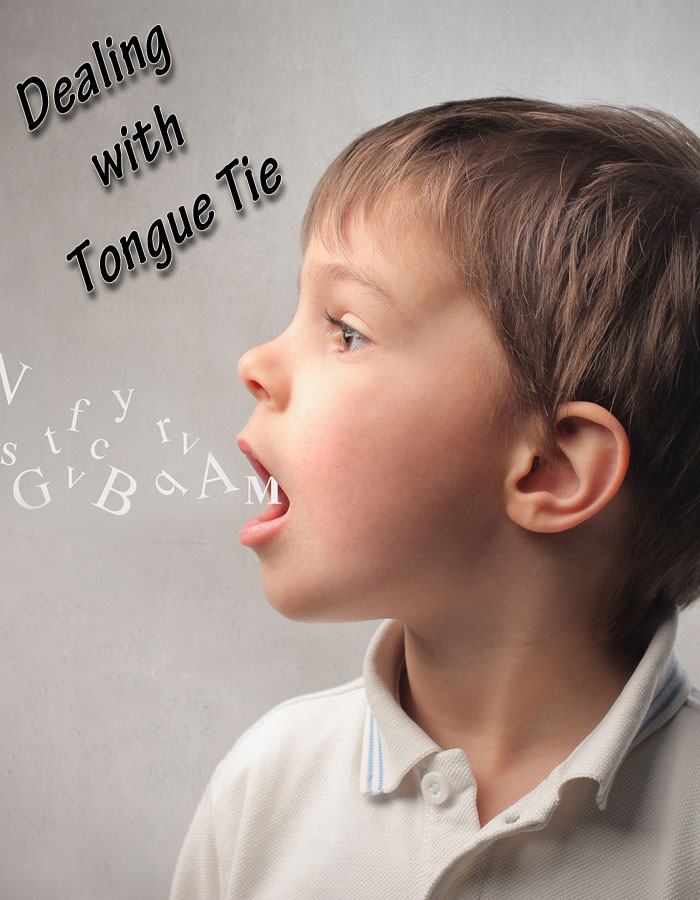 Dealing With Tongue Tie