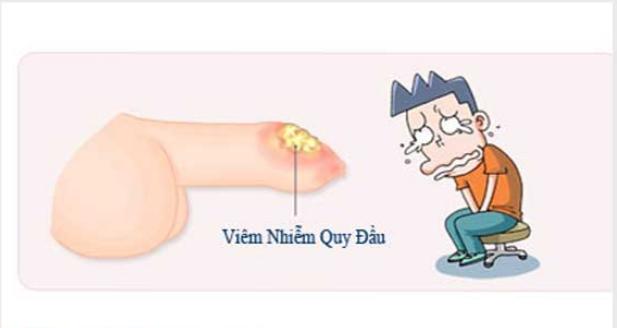 tat-tan-tat-benh-viem-bao-quy-dau-nam-gioi-nhu-the-nao.png