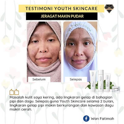 Testimoni Youth Skincare