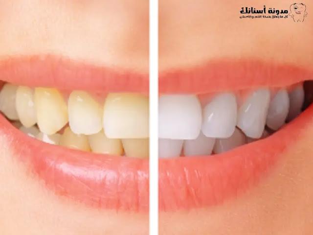 10  نصائح من أجل تبييض الأسنان .
