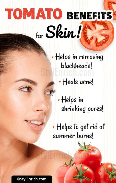Amazing Beauty Benefits of Tomatoes for your Skin
