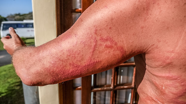 the daily news of open water swimming jellyfish sting pain and relief