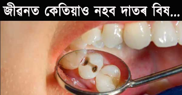 teeth pain in Assamese