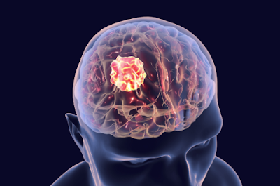 7 Warning Signs Of A Brain Tumor You Should Know
