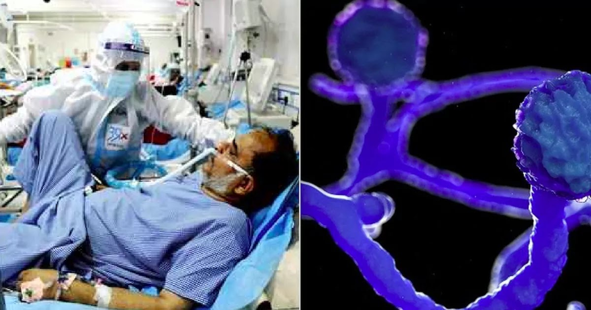 CoViD-19 Patients In India Are Suffering From 'Mucormycosis', A Serious Fungal Infection