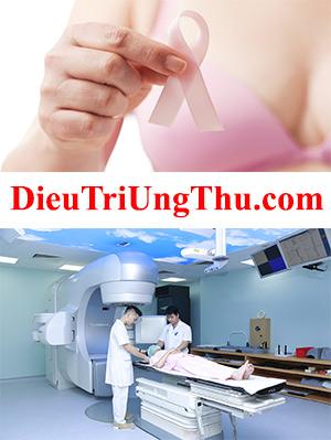 DieuTriUngThu.com