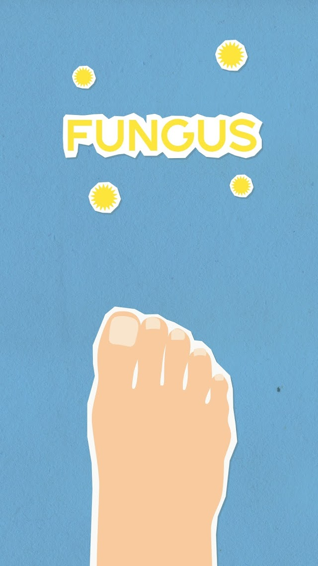 Fungal  infection in humans