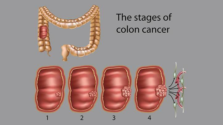4 Stages of Colon cancer