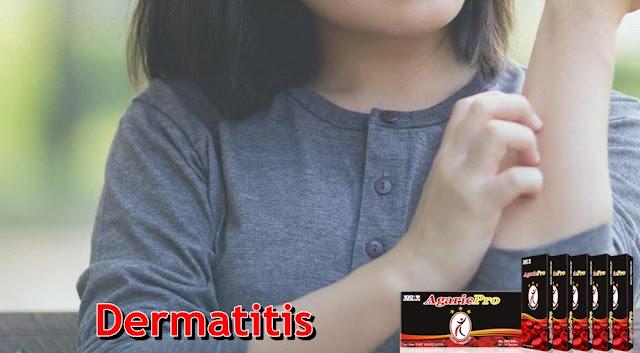 Obat Dermatitis Alami Resep Dokter di Apotik
