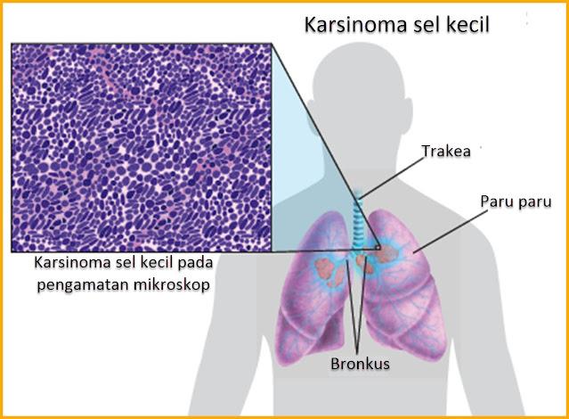Seberapa cepat karsinoma sel kecil tumbuh? karsinoma sel kecil mampu melipatgandakan waktu pertumbuhan kanker. Mengingat asal mula neuroendokrinologis dari SCLC, hal tersebut menggambarkan sebuah prototipe keganasan dengan pertumbuh cepat dengan waktu dua kali lipat dalam kisaran 25 hingga 217 hari menurut beberapa penelitian. Menurut penelitian Wang et al, waktu penggandaan SCLC berkisar antara 54–132 hari.   Apa itu karsinoma sel kecil stadium 4? Stadium IV karsinoma sel kecil berarti kanker paru-paru kecil telah menyebar ke lebih dari 1 area di paru-paru lain, cairan yang mengelilingi paru-paru atau jantung, atau bagian tubuh yang jauh melalui aliran darah. Begitu sel kanker masuk ke dalam darah, kanker bisa menyebar ke mana saja di tubuh.