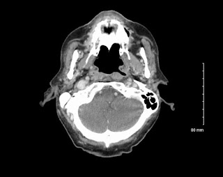 cancer-nose-paranasal-sinuses-CT-Scan