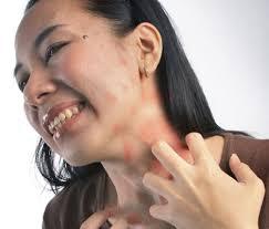 Apa Bedanya Kulit Berjamur Dengan Kulit Alergi?, perbedaan antara kulit yang berjamur dengan kulit yang alergi