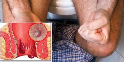 Gambar Cara mengecilkan Bengkak di sekitar anus