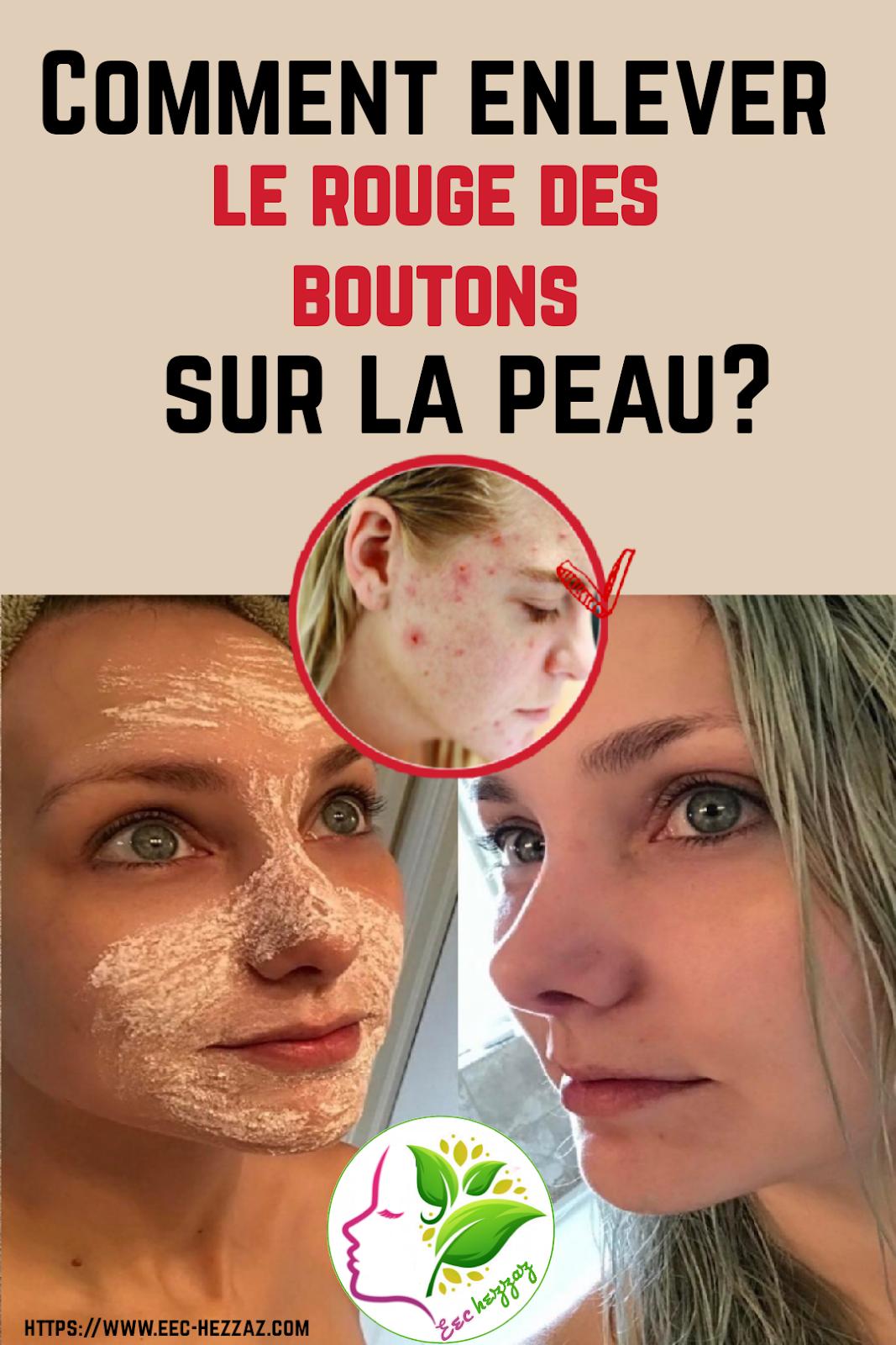Comment enlever le rouge des boutons sur la peau?