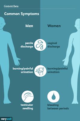 Kenali Empat Pencegahan Penyakit Gonore ( Kencing Nanah )