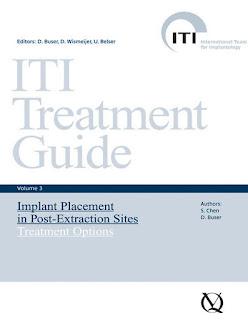 ITI Treatment Guide Vol 3