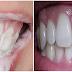 Oleskan Bahan Alami Ini Pada Gigi dan Diamkan Beberapa Menit, Maka Gigi Mu Akan Putih Bersih dan Bebas Bau Mulut Sepanjang Hari!