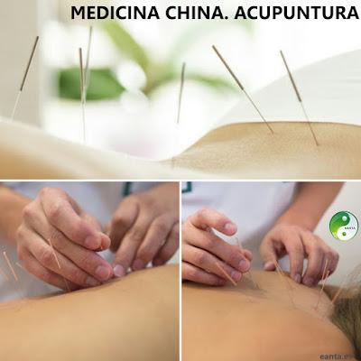 http://www.eanta.es/cursos/medicina-china-acupuntura/
