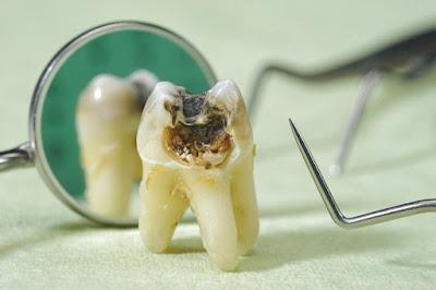 Cara Mencegah Gigi Berlubang Pada Anak.