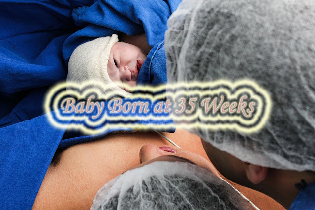 Things You Need to Know about Baby Born at 3 Weeks
