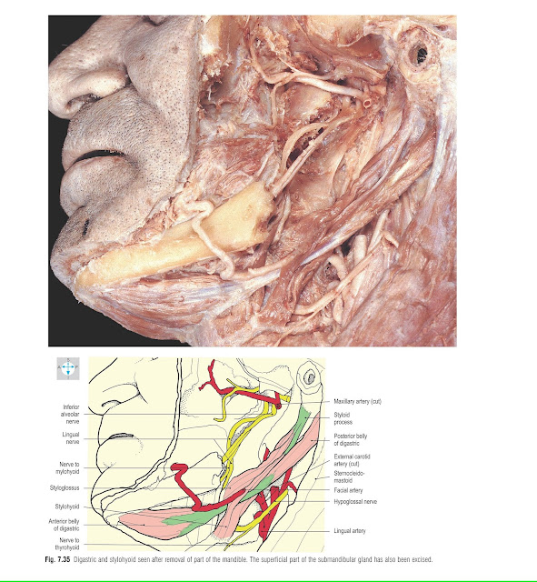 Digastric and stylohyoid seen after removal of part of the mandible. The superficial part of the submandibular gland has also been excised.