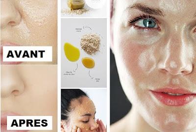 5 remèdes pour éliminer la brillance du visage