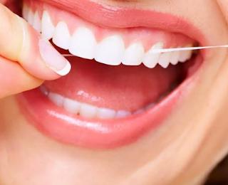 Cara Memutihkan Gigi Dan Menjaga Kesegaran Mulut