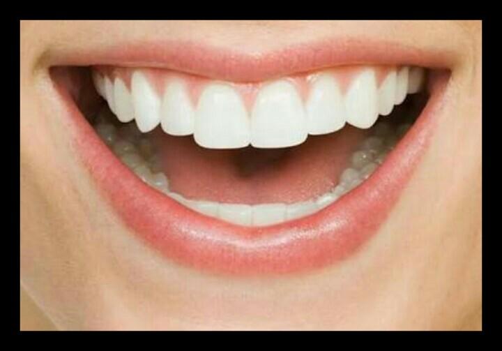 Cara Memutihkan Gigi Secara Alami Ilmu Dan Informasi