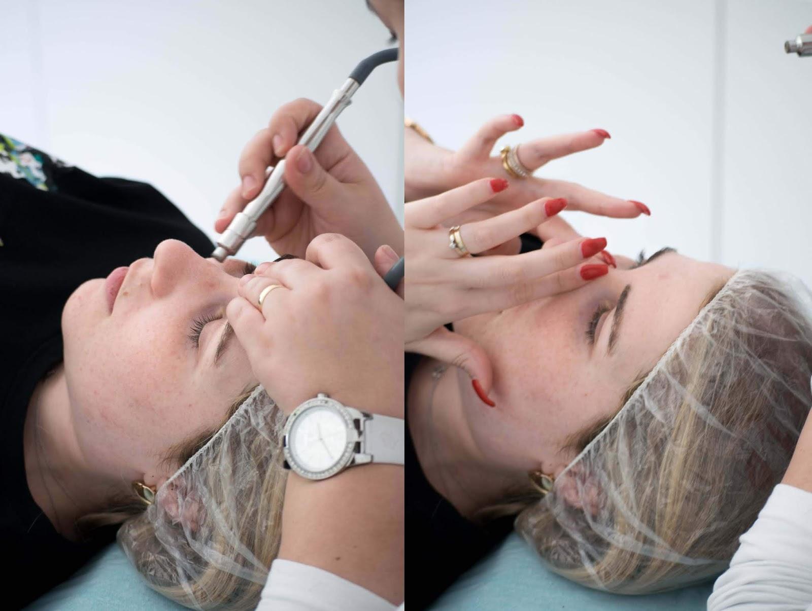 Tratamento de Micro-dermobrasão nas Clinicas Sorria