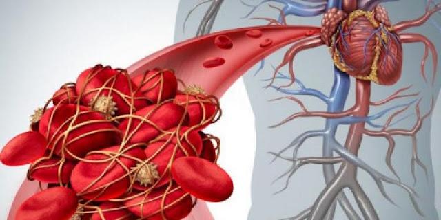 Pet znakova ukazuje na to da imate krvni ugrušak