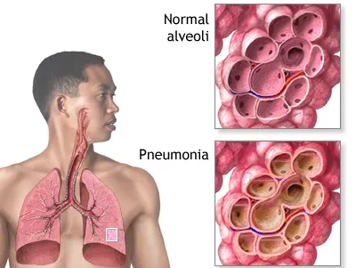 Treatment of pneumonia