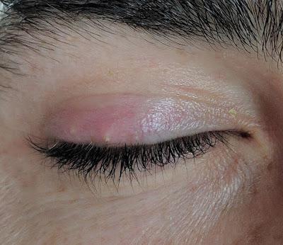 eyelash extension allergic reaction remedies, allergic reaction to eyelash extension glue symptoms, how do you treat an allergic reaction to eyelash extensions