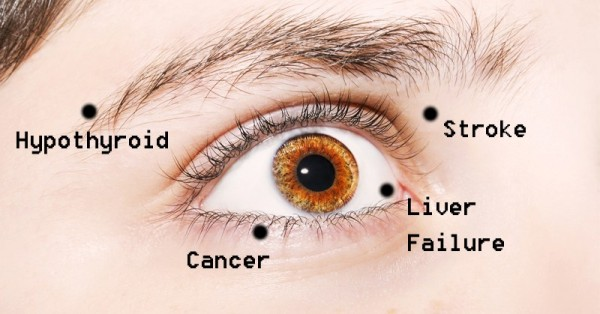 8 Things Your Eyes Are Trying To Tell You About Your Health
