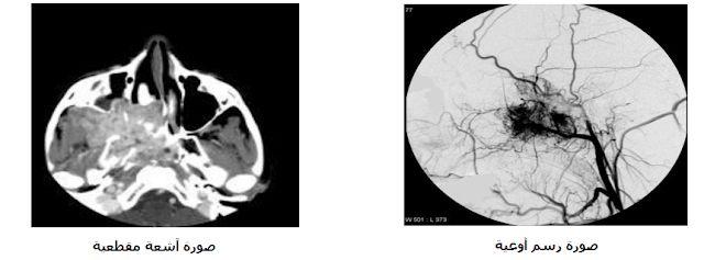 الورم-الليفي-الوعائي-آشعة-مقطعية