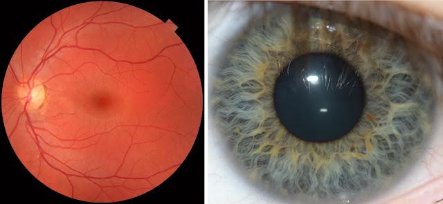 Pembuluh Vena Retina dan Iris pada Mata
