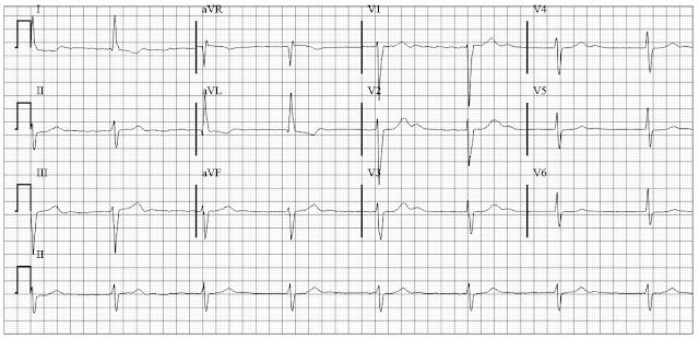 ECG of Atrial fibrillation  with CHB junctional escape regular rhythm