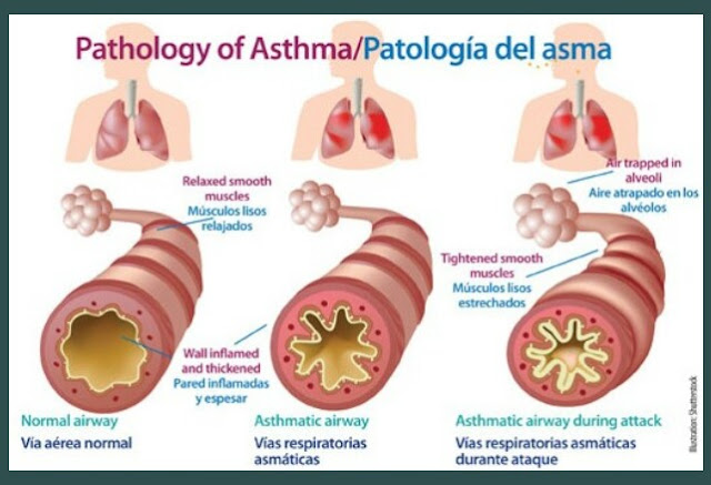 How to treat asthma with herbal medicines