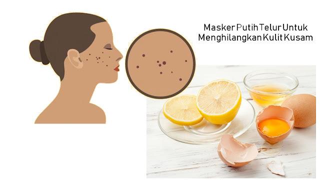 Manfaat Masker Alami Putih Telur Untuk Kulit Cantik Dan Kering