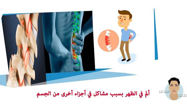 ألم في الظهر بسبب مشاكل في أجزاء أخرى من الجسم