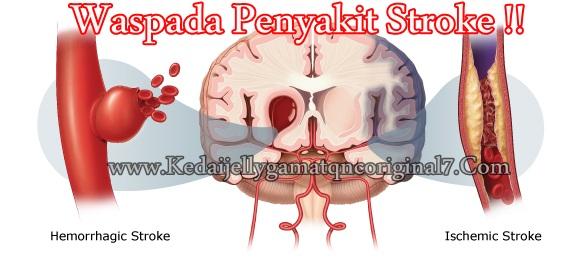 Penyebab Stroke & Obat Stroke Alami, Ampuh dan Aman