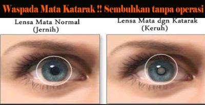 tanda dan gejala mata katarak