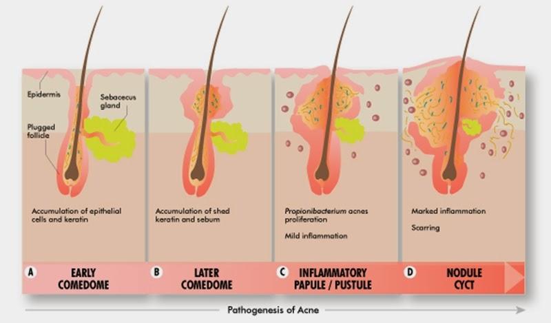 Diagram Of Sebaceous Cyst - Wiring Diagrams Schema