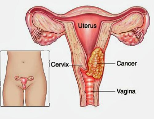 kanser pangkal rahim