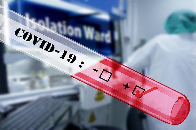 Foto positif Rapid Test dan Test Swab virus Corona covid-19