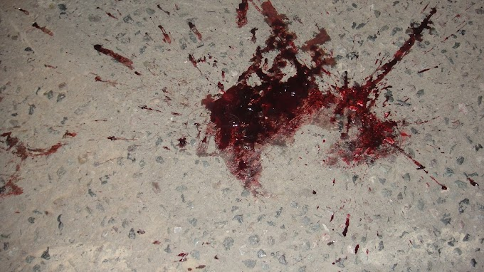 What are the Medicolegal importance of blood stain?