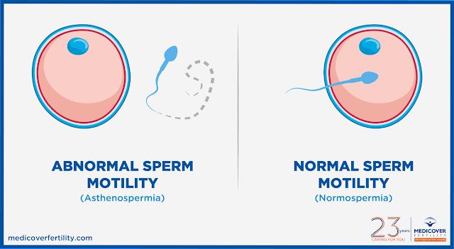 Asthenozoospermia bisa sembuh & hamil