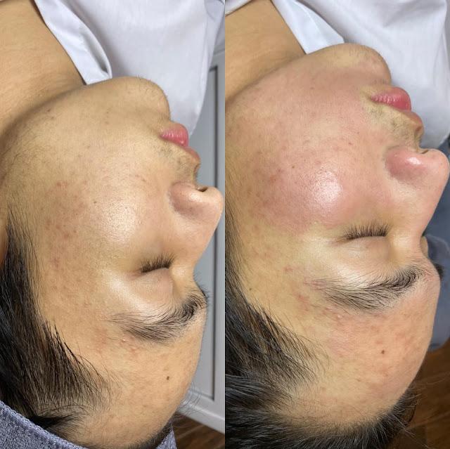 Ca điều trị bên Tuyết Nguyễn Beauty & Spa