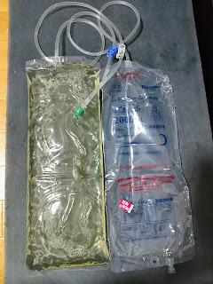 透析液の写真