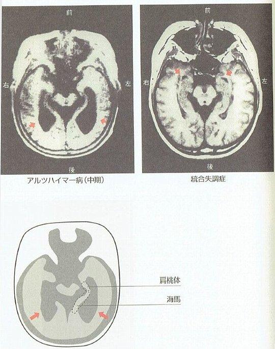 図2 統合失調症の脳の傷 MRIイメージ図