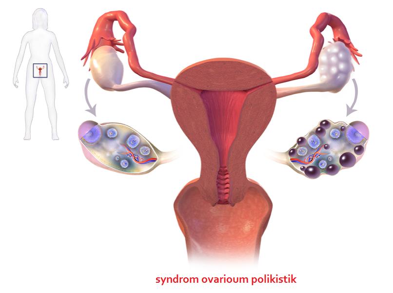 pcos-sindrom-ovarium-polikistik